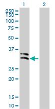 Western blot - PRSS2 antibody (ab76781)