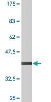 Western blot - RNF182 antibody (ab76796)