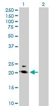 Western blot - PRRG2 antibody (ab76797)
