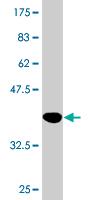 Western blot - SCUBE3 antibody (ab76798)