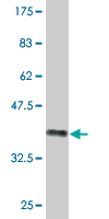 Western blot - NAALADL2 antibody (ab76801)