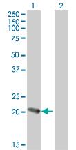 Western blot - PFDN5 antibody (ab76802)