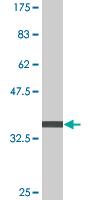Western blot - RNF180 antibody (ab76803)