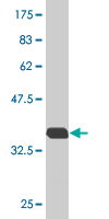 Western blot - RAB7B antibody (ab76804)