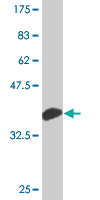 Western blot - MAP3K15 antibody (ab76806)