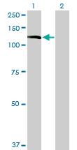Western blot - INPP5F antibody (ab76809)