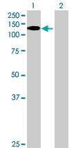 Western blot - MORC3 antibody (ab76813)