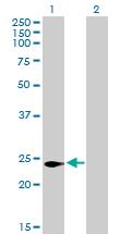 Western blot - C16orf5 antibody (ab76814)