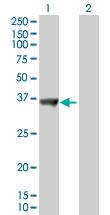 Western blot - SNX11 antibody (ab76816)