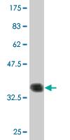 Western blot - PCP4 antibody (ab76840)