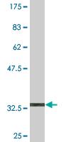 Western blot - PCDHA2 antibody (ab76845)