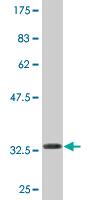Western blot - NAT14 antibody (ab76846)