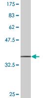 Western blot - SCYL1 antibody (ab76851)
