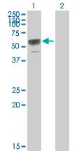 Western blot - Anti-Osteoprotegerin antibody (ab76854)