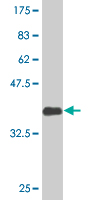 Western blot - CREB3L2 antibody (ab76856)