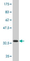 Western blot - ATP8B4 antibody (ab76857)