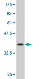 Western blot - PEX14 antibody (ab76862)