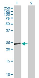Western blot - VEGFB antibody (ab76863)
