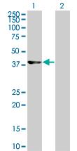 Western blot - Cdk9 antibody (ab76873)