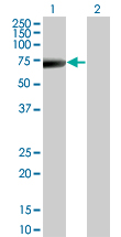 Western blot - Cytokeratin 5 antibody (ab76879)