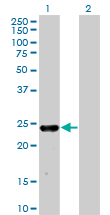 Western blot - MXI1 antibody (ab76881)