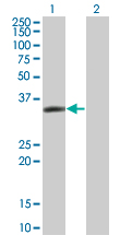 Western blot - LASP1 antibody (ab76882)