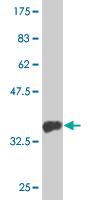 Western blot - MTMR1 antibody (ab76883)