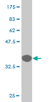 Western blot - Rsk 2 / MAPKAP Kinase 1b antibody (ab76886)