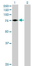Western blot - ARHGAP24 antibody (ab76898)