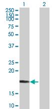 Western blot - NETO2 antibody (ab76899)