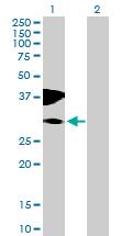 Western blot - C10orf81 antibody (ab76900)