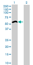 Western blot - ZCCHC6 antibody (ab76901)