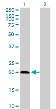 Western blot - PPCDC antibody (ab76903)