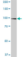 Western blot - UNC45A antibody (ab76905)