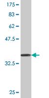 Western blot - ASAP1 / DDEF1 antibody [N/A] (ab76916)