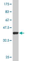 Western blot - SNF5 antibody (ab76918)