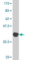Western blot - Thyroid Peroxidase antibody (ab76935)