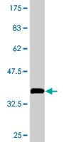 Western blot - PITPN antibody (ab76938)