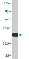 Western blot - Activin Receptor Type IIB antibody (ab76940)
