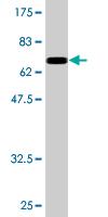 Western blot - NFIB / NF1B2 antibody (ab76957)