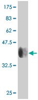 Western blot - P70 S6 Kinase beta antibody (ab76960)