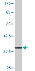 Western blot - DYRK4 antibody (ab76961)