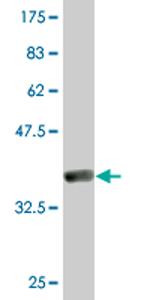 Western blot - GTF2A2 antibody (ab76962)