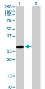 Western blot - CCBL1 antibody (ab76963)