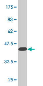 Western blot - HOXD3 antibody (ab76970)