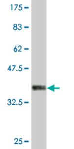 Western blot - Isoleucyl tRNA synthetase antibody (ab76971)
