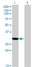 Western blot - MED6 antibody (ab76986)