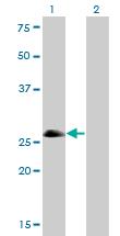 Western blot - Achaete-scute homolog 1 antibody (ab76987)