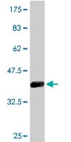 Western blot - CPSF73 antibody (ab76998)