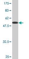 Western blot - VAPA antibody (ab77002)